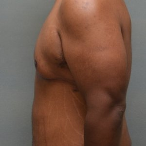 manhattan gynecomastia surgery after 2